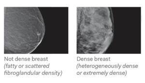 Breast Density 1